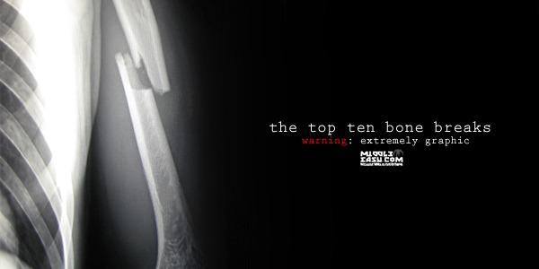 The Top Ten Bone Breaks in MMA