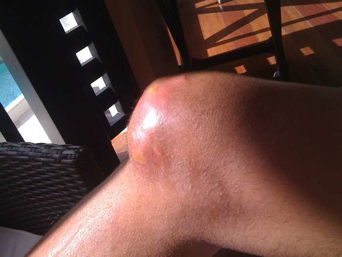 Staph infection randleman