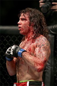 Clay Guida wins by breaking Rafael dos Anjos' jaw