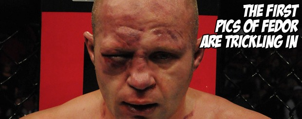 The first pics of Fedor are trickling in