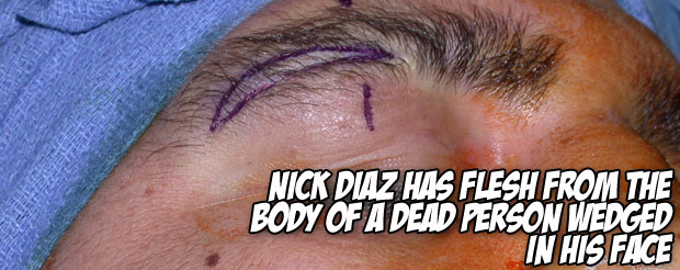Nick Diaz has flesh from the body of a dead person wedged in his face