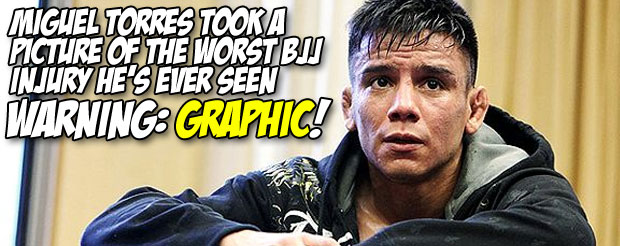 Miguel Torres took a picture of the worst BJJ injury he's ever seen *WARNING: Graphic!*