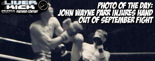 Photo of the day: John Wayne Parr injures hand-out of September fight