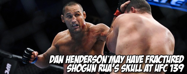 Dan Henderson may have fractured Shogun Rua's skull at UFC 139