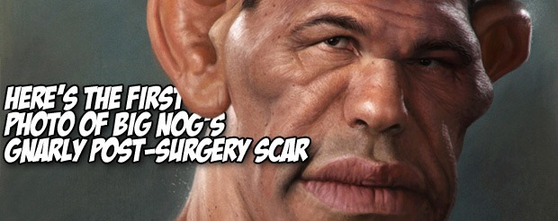 Here's the first photo of Big Nog's gnarly post-surgery scar