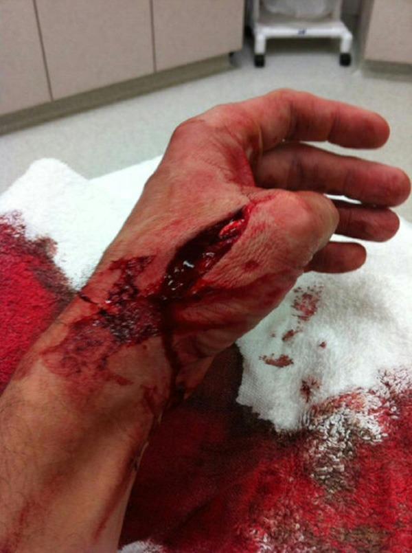 guy mezger's cut hand
