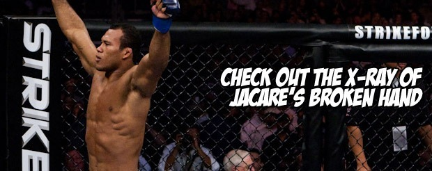 Check out the X-Ray of Jacare's broken hand