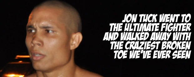 Jon Tuck went to The Ultimate Fighter and walked away with the craziest broken toe we've ever seen
