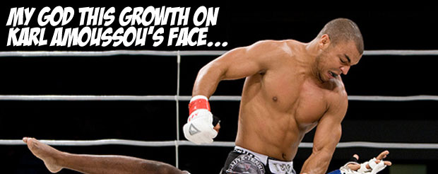 My god this growth on Karl Amoussou's face…