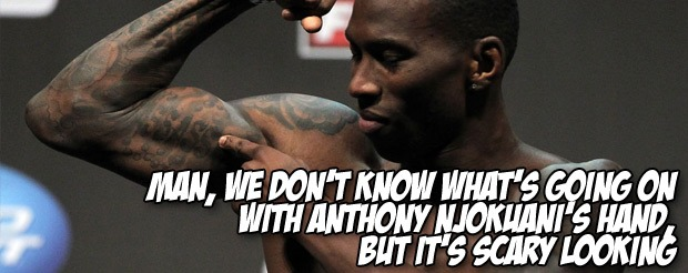 Man, we don't know what's going on with Anthony Njokuani's hand, but it's scary looking