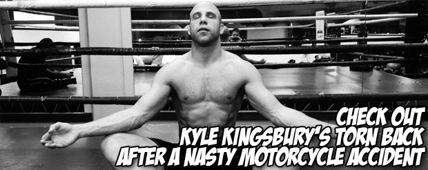 Check out Kyle Kingsbury's torn back after a nasty motorcycle accident