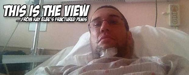 MMA fighter Ray Elbe fractured his penis during sex.  Yes, his penis
