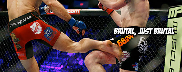 Here's a picture of the gifts new Strikeforce welterweight champ, Tarec Saffiedine, gave Nate Marquardt's leg
