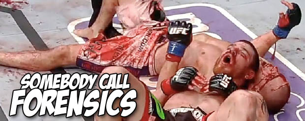 This nine day progressive pictorial of Joe Lauzon's face healing regeneration demonstrates what it takes to earn 'Fight of the Year' honors in the UFC
