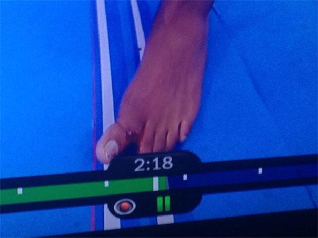 broke toe