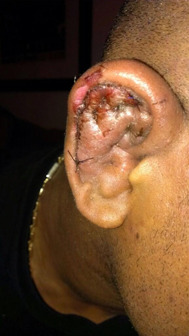 Wait, you need to see Hector Lombard's cauliflower ear before you can live life