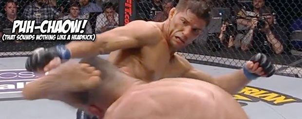Apparently Josh Thomson has a permanent dent and fluid in his shin from his Nate Diaz headkick