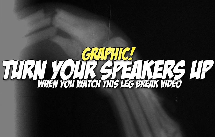 GRAPHIC: MMA fighter lands on his leg and it instantly SNAPS in half in this video