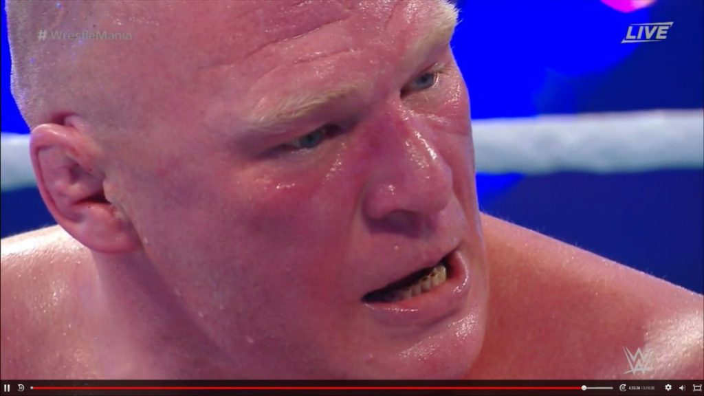 rdZrv83-1024x576 Report: What the hell is going on with Brock Lesnar's teeth?