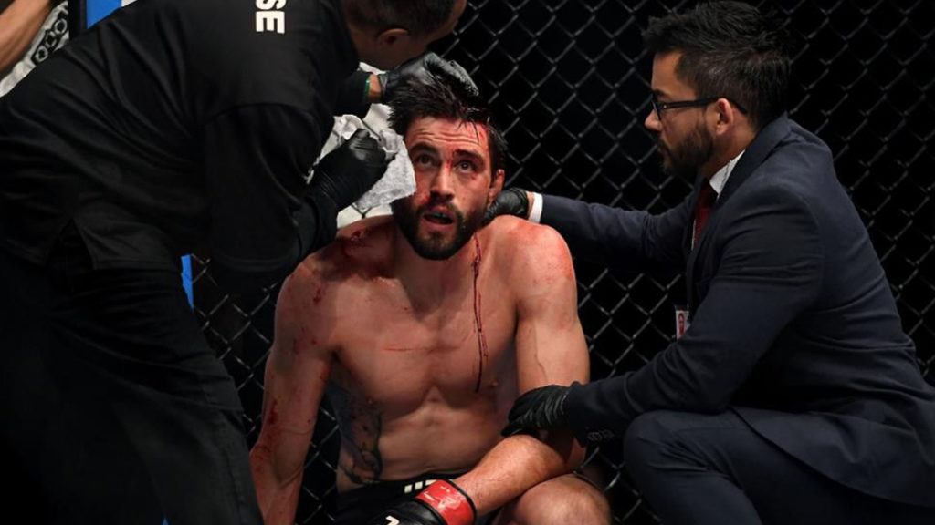 Carlos Condit: 'I Love What I Do, But Maybe My Time Has Passed'