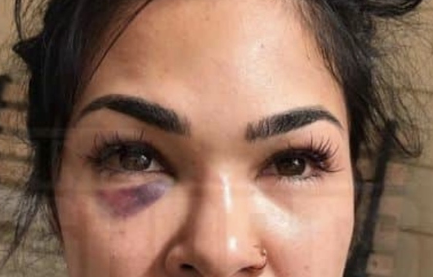 New pics emerge of Rachael Ostovich & her domestic violence injuries