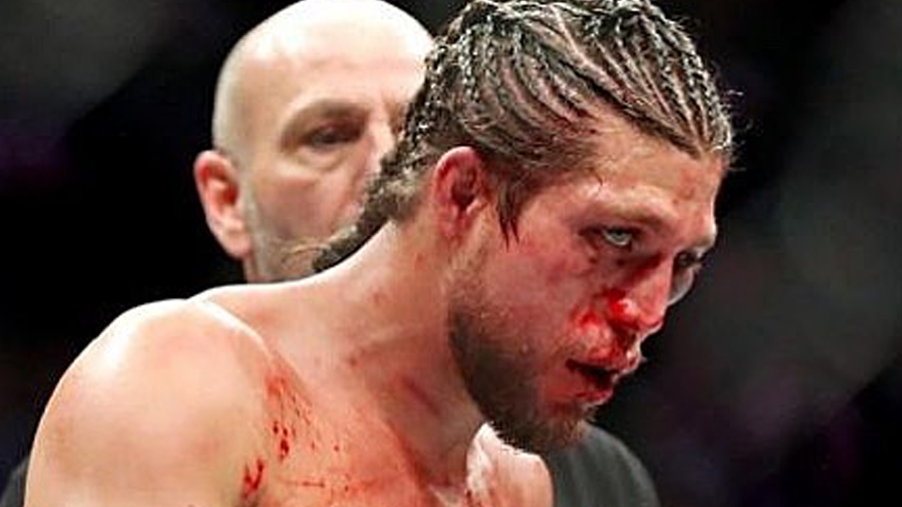 Brian Ortega Breaks Silence On His UFC 231 Loss, Reveals Multiple Injuries