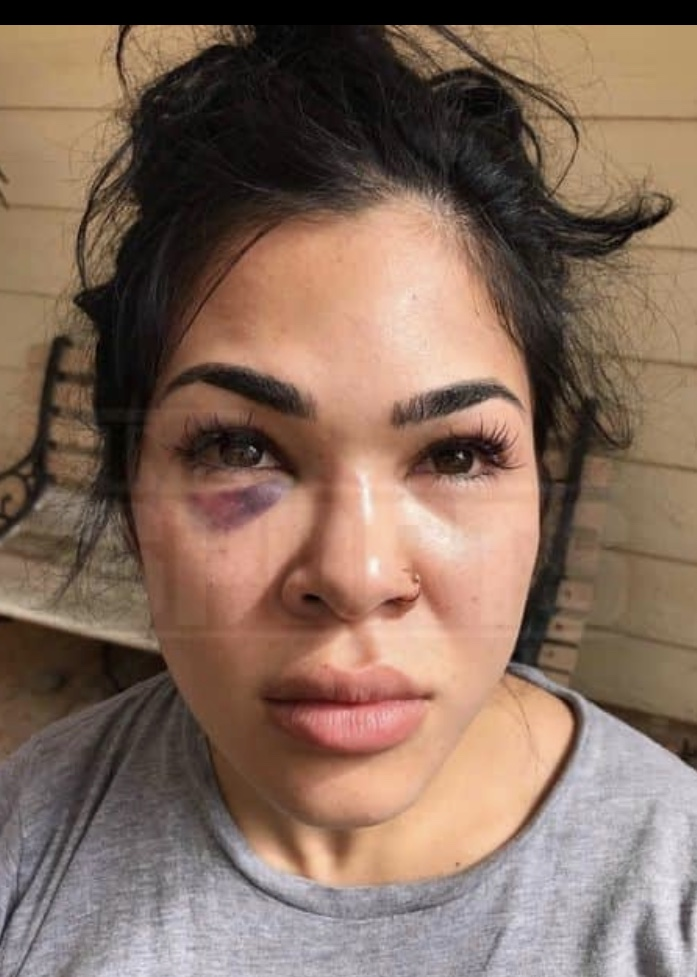 IMG_2222 New pics emerge of Rachael Ostovich & her domestic violence injuries