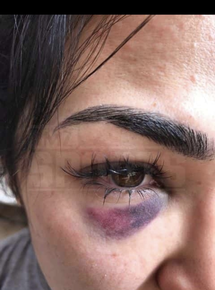 IMG_2223 New pics emerge of Rachael Ostovich & her domestic violence injuries
