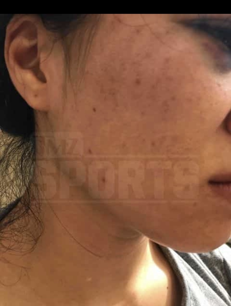 IMG_2225 New pics emerge of Rachael Ostovich & her domestic violence injuries