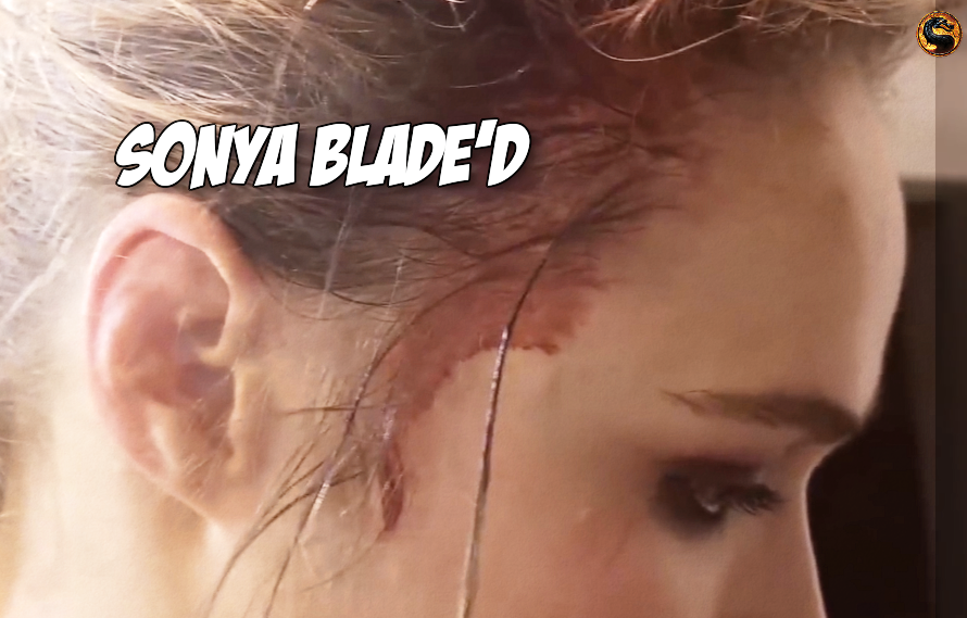 Pics/Video: Ronda Rousey's cut was nastier/cooler/bloodier than we first thought