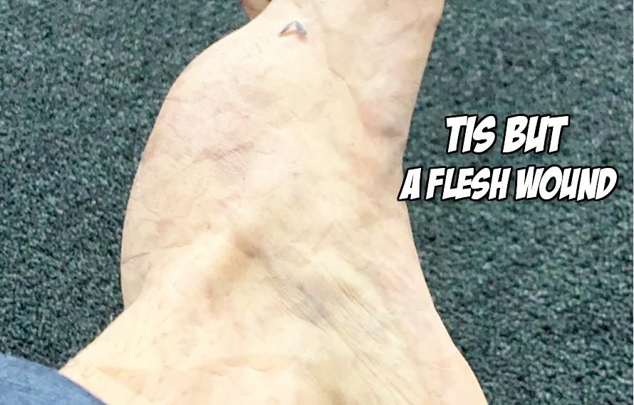 Pics: Despite horrifying broken foot Antonio Trocoli wins fight on Contender's Series