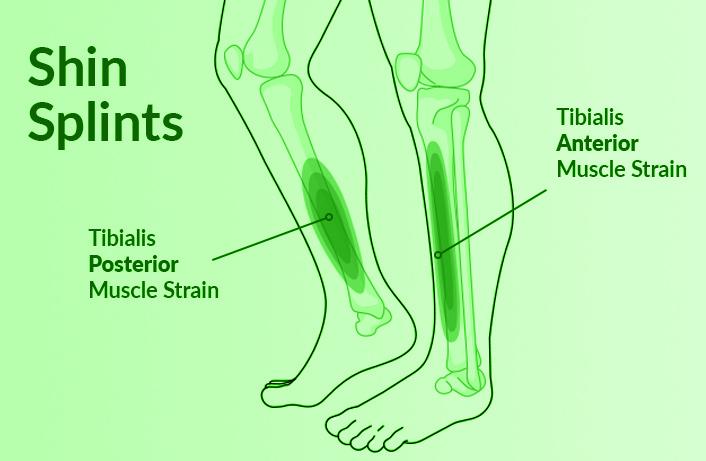 Shin Splints