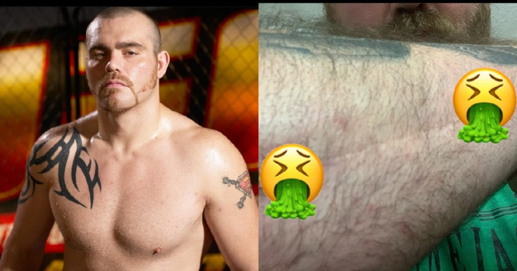 Tim Sylvia Asks UFC's Help For Lingering Broken Arm Issues From 2004 Frank Mir Fight