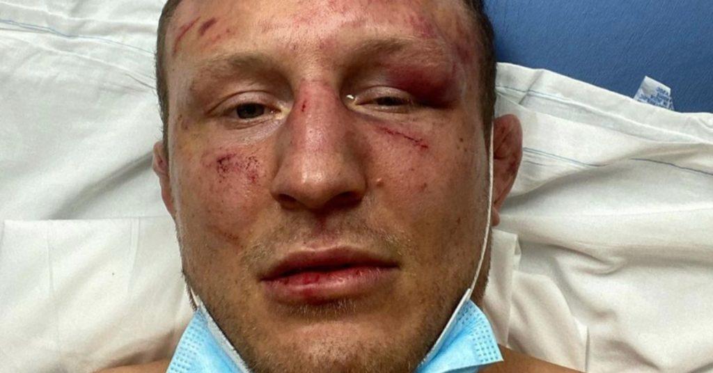 Jack Hermansson Releases Statement Following UFC Vegas 16 Defeat, Reveals Broken Toe, Eye Socket