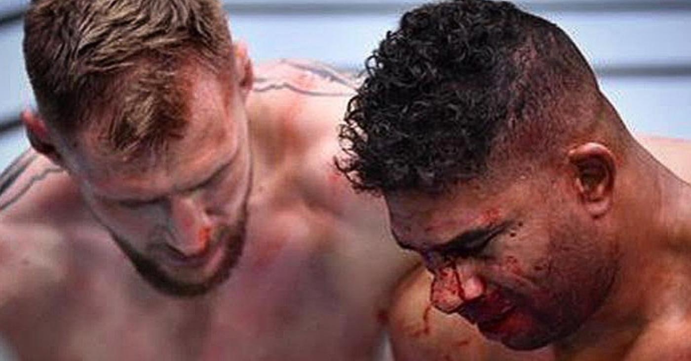 Alistair Overeem Praises 'True Warrior' Alexander Volkov, Reveals Broken Nose